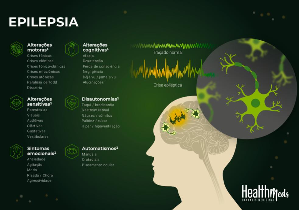 Lâmina sobre o uso da Cannabis Medicinal nas Epilepsias Farmacorresistentes